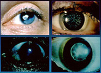 Different Types Of Cataracts And The Symptoms Of Cataracts
